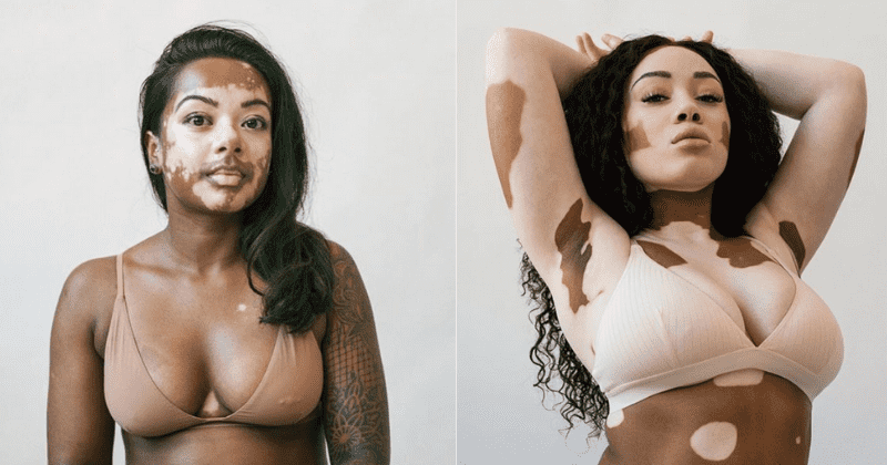 These 19 Women With Vitiligo Look Beautiful In This Photographer S Powerful Images